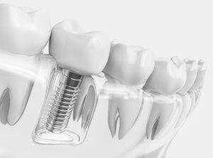Close Up Of Dental Implant