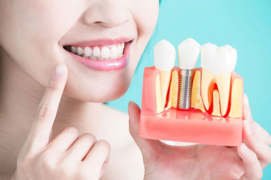Dental Implant Pain and Recovery