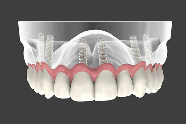 Dental Implants in Aurora, OH